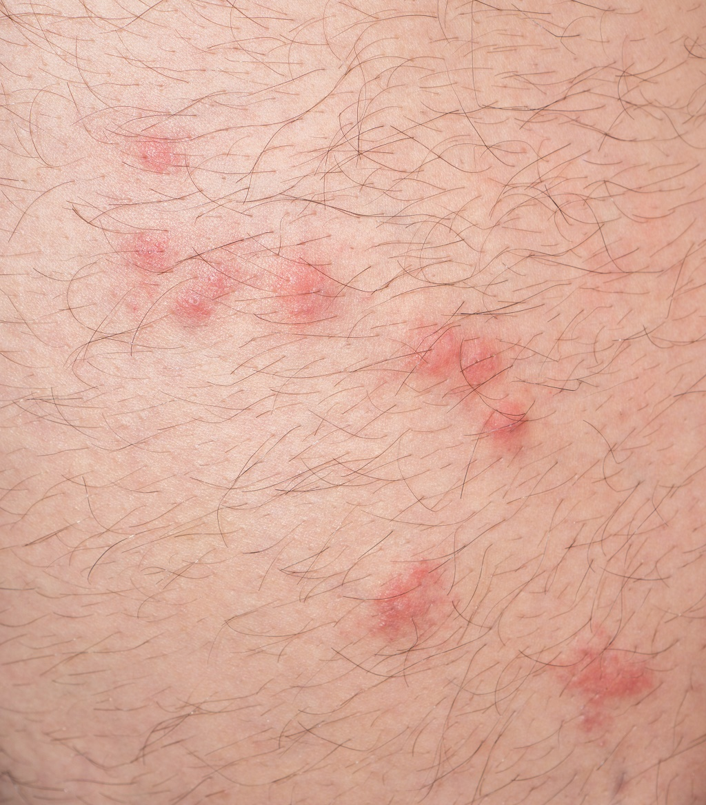 Flea Bites Vs Mosquito Bites How Can You Tell Between The